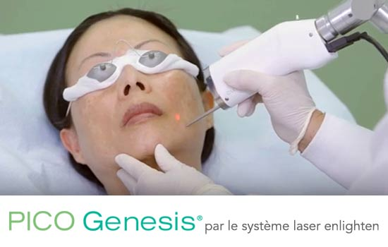 PICO Genesis treatment